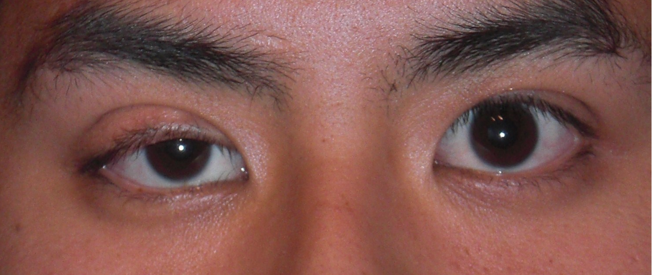 ptosis of the eye