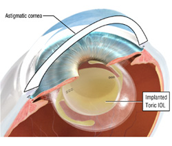 Astigmatism Surgery and Astigmatism Correction