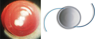 Multifocal Lens Implant and Multifocal Implants