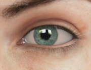 refractive cataract surgery procedure