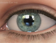 Refractive Errors and Eye Diseases