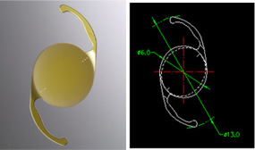 Toric Lens Implants