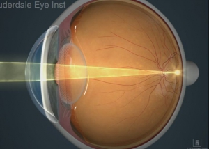 What is a refractive error?