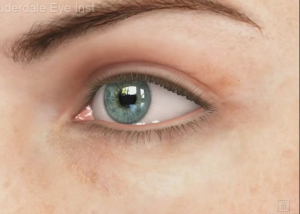 What is refractive surgery?