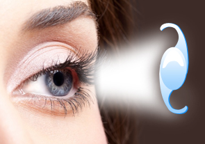 cataract lens implants