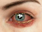 Blepharitis Overview
