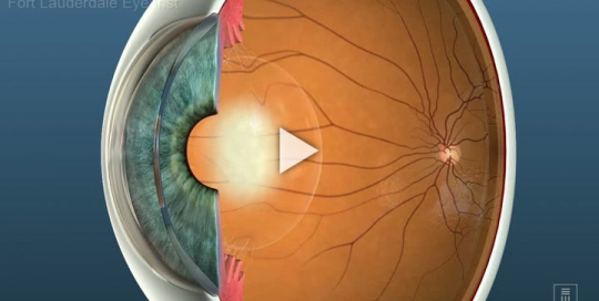 Cataracts Overview