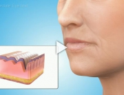 Cosmetic Fillers Overview