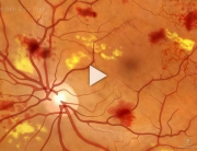 Diabetic Retinopathy Overview