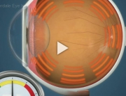 Glaucoma Ocular Hypertension