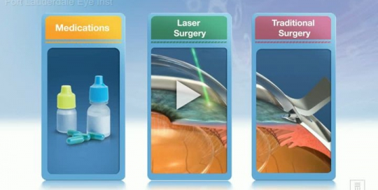 Glaucoma Treatment Overview