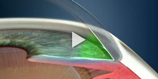 Glaucoma Type Open Angle
