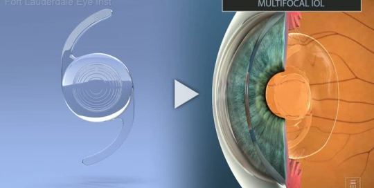 IOL Multifocal Introduction