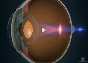 IOL Toric Lens Introduction RLE