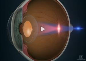 IOL Toric Lens Introduction RLE