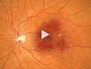 Macular Degeneration Overview
