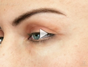 Ptosis Overview