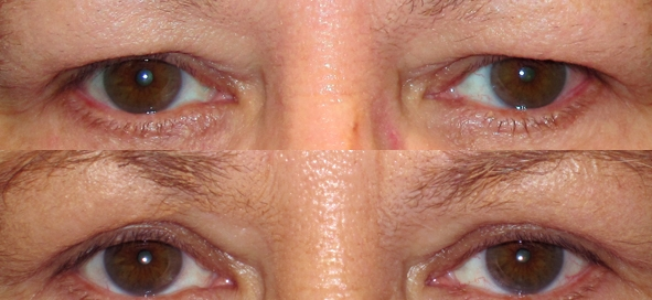 eyelid rejuvenation | upper eyelid blepharoplasty